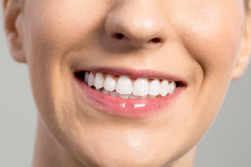 Vrouwenglimlach, tanden die, tandzorg witten stock afbeelding