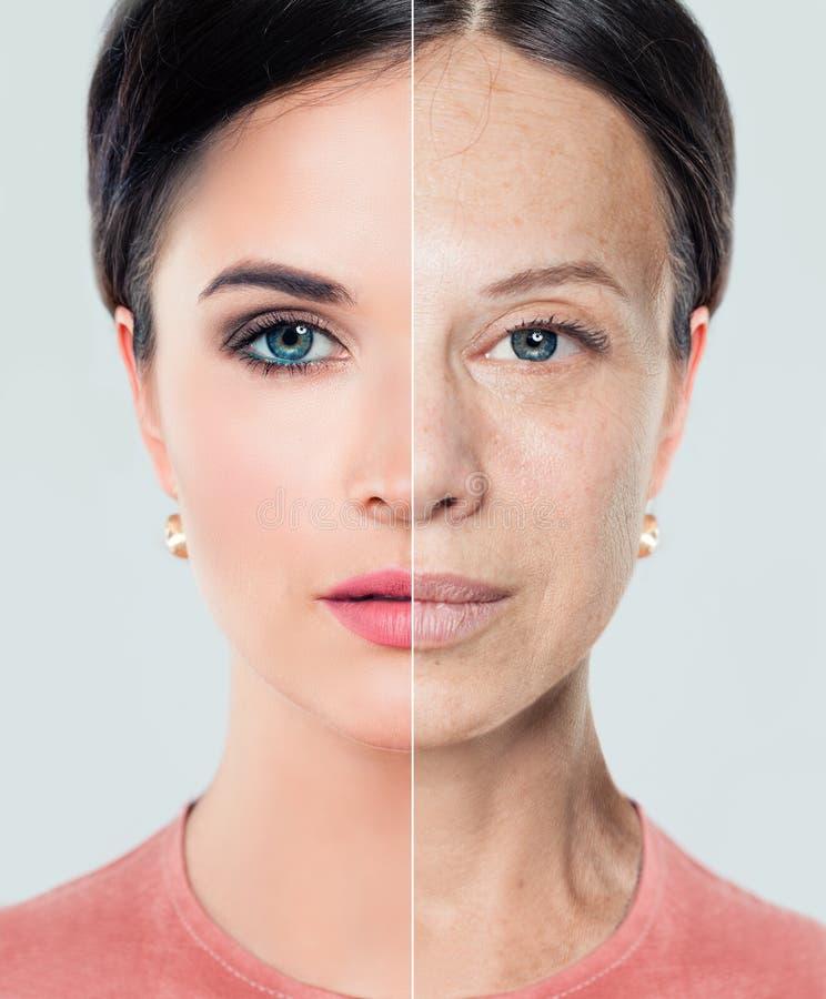 Vrouwenlippen before and after de injecties van de lippenvuller stock afbeelding