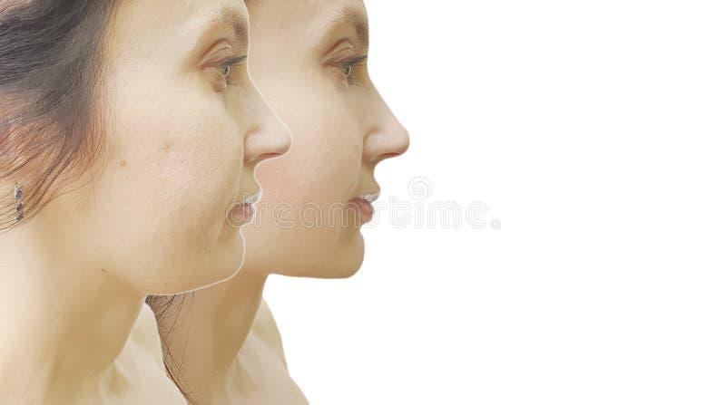 Vrouwenonderkin before and after behandeling stock fotografie