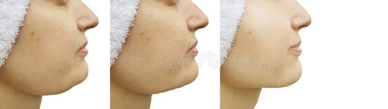 Vrouwenonderkin before and after correctie het saggingtightening royalty-vrije stock foto