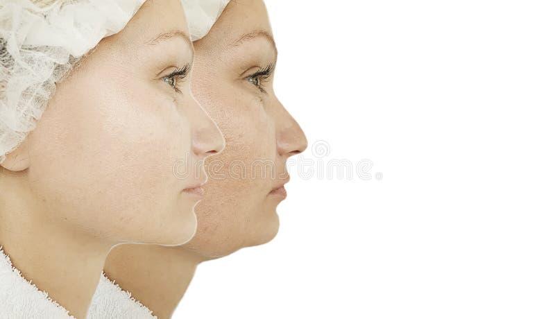 Vrouwenonderkin before and after de behandeling van correctieliposuction royalty-vrije stock afbeelding