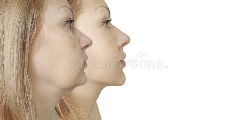 Vrouwenonderkin die before and after procedurebehandeling verzakken royalty-vrije stock fotografie