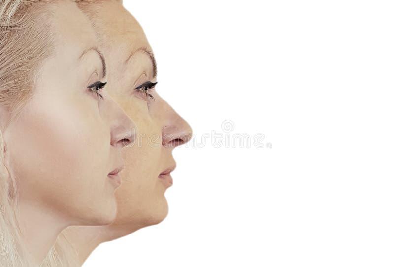 Vrouwenonderkin vóór correctie het aanhalen behandeling stock afbeeldingen
