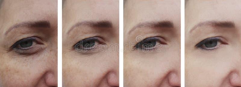 Vrouwenrimpels vóór verwijdering na de rijpe opheffende correctie van de behandelingscorrectie royalty-vrije stock afbeelding