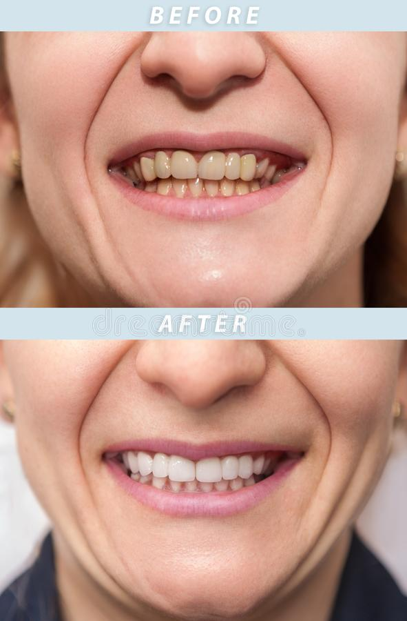 Vrouwentanden before and after tandbehandeling Gelukkige glimlachende vrouw  stock afbeelding