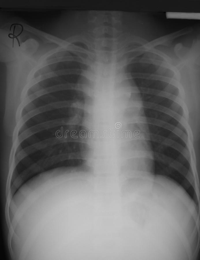 Vue antéropostérieure de film de coffre (AP) d'un homme de 15 années avec le lymphome, élargissement hilar expliqué de les deux ga images stock