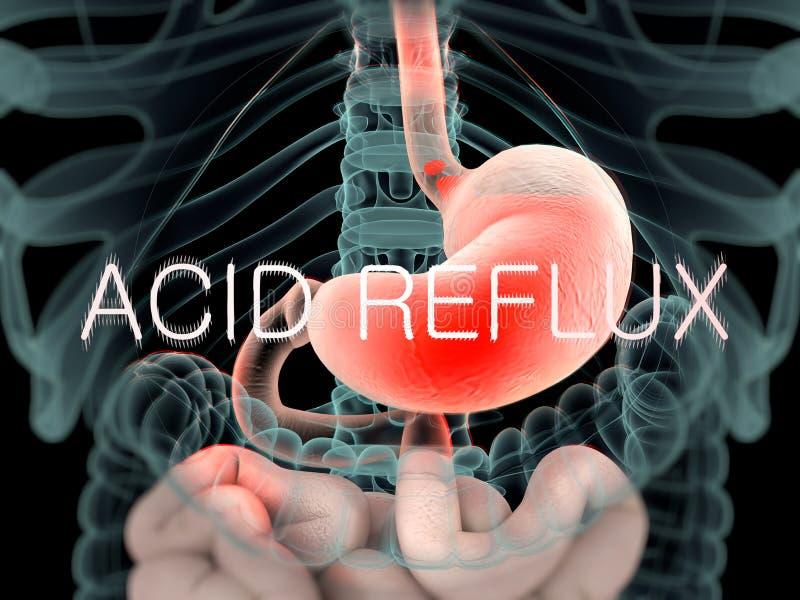 Vue comme un rayon X d'anatomie humaine de l'abdomen et des intestins montrant le reflux acide illustration de vecteur