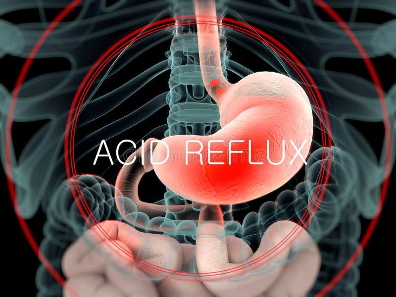 Vue comme un rayon X d'anatomie humaine de l'abdomen et des intestins montrant le reflux acide illustration libre de droits