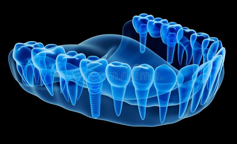 Vue de rayon X de dentier avec l'implant illustration stock