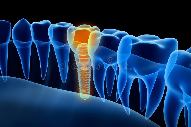 Vue de rayon X de dentier avec l'implant Vue de rayon X Illustration médicalement précise illustration stock