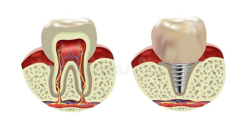 Vue réaliste en coupe d'implant humain artificiel de dent illustration libre de droits