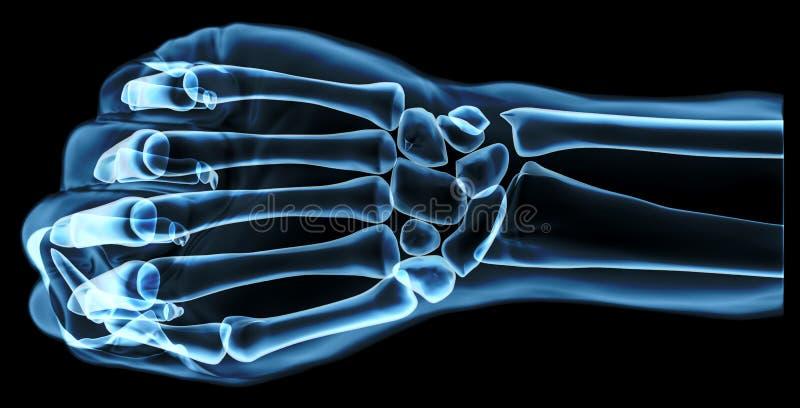 Vuist onder de röntgenstralen stock illustratie