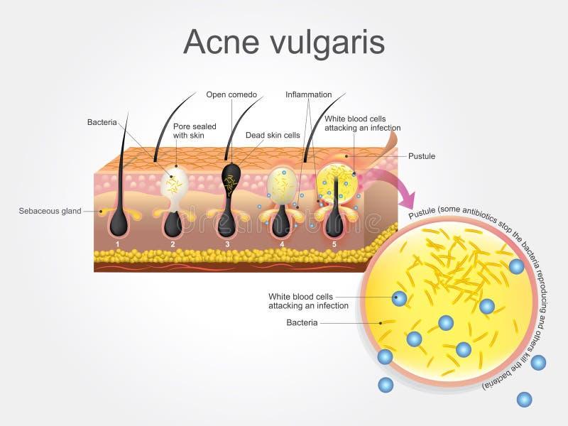 Vulgaris acne stock illustratie