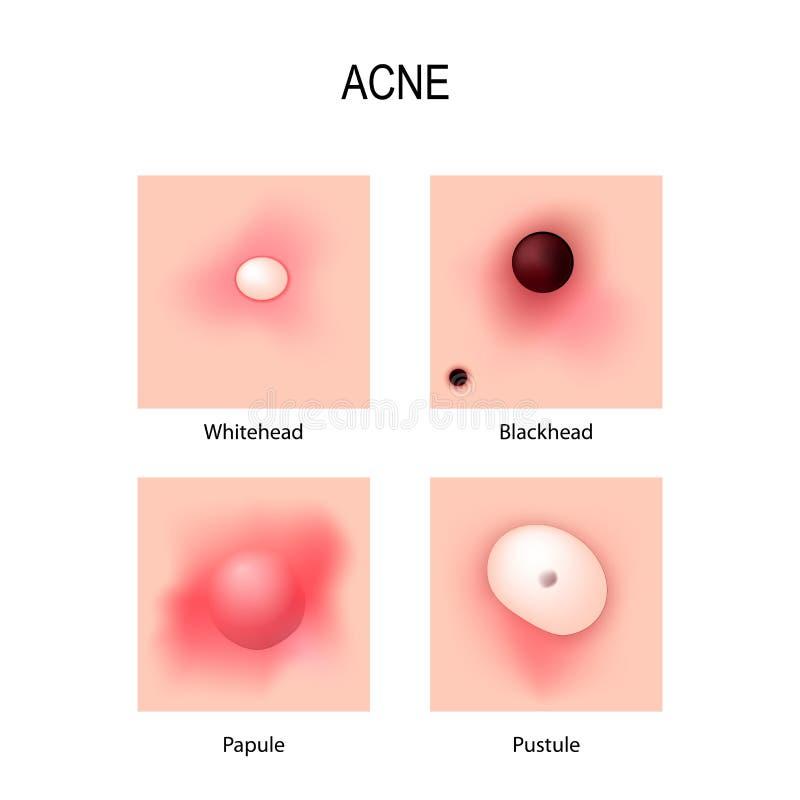 Vulgaris acne Stadia van ontwikkeling Types van pukkels vector illustratie
