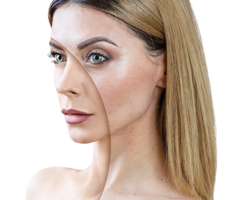 Vuxen kvinna med behandling för akne före och efter arkivfoto