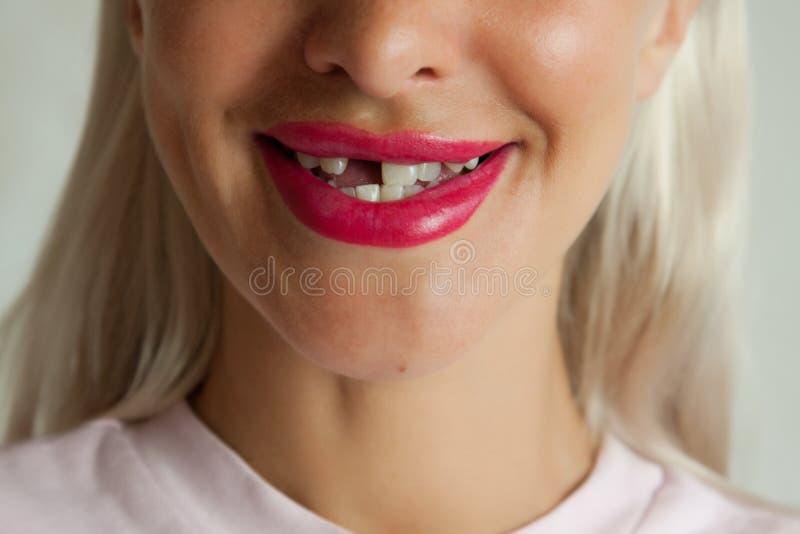 Vuxen kvinna med brutet le för framtand arkivbild