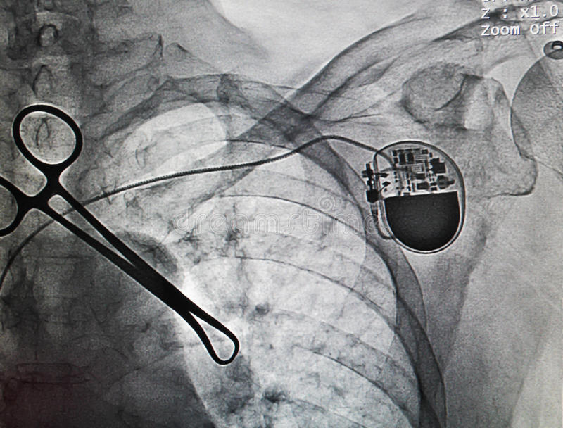 VVIR pacemaker. In x-ray image in cardiac catheterization laboratory stock photos