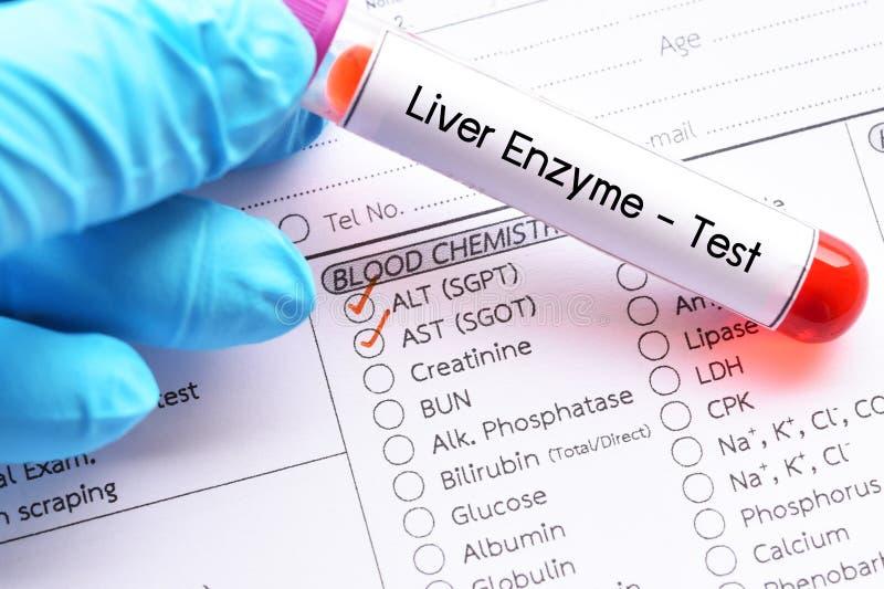 Wątrobowy enzymu test zdjęcia stock