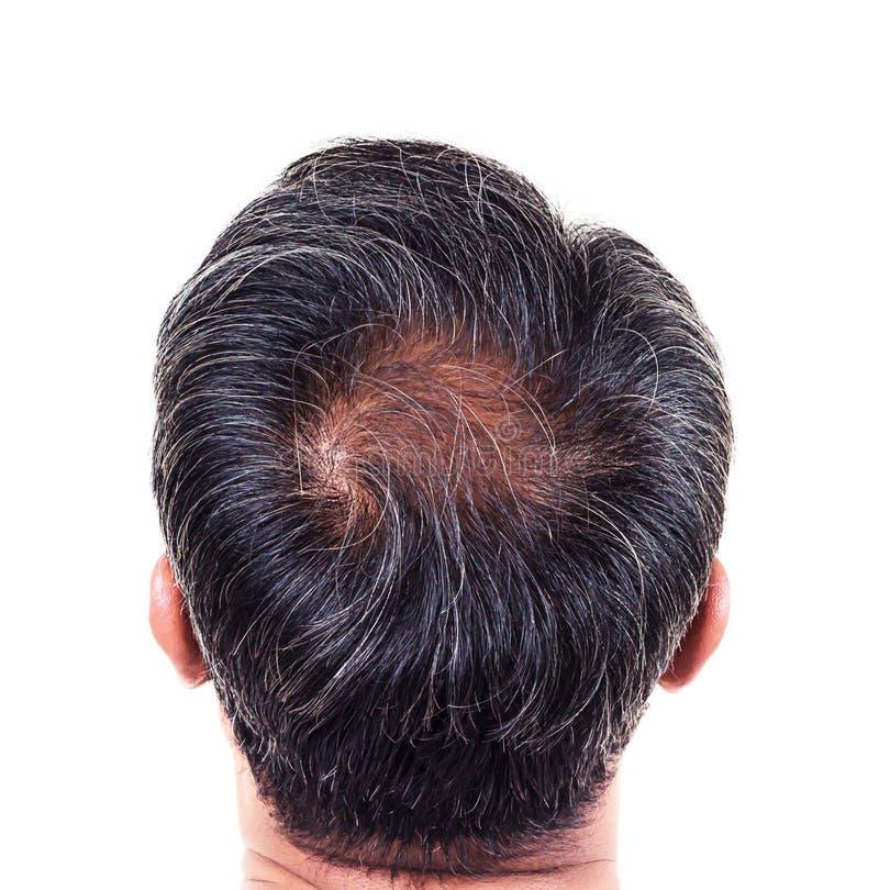 Włosiana strata i popielaty włosy, samiec głowa z włosianej straty objawami popieramy obraz stock