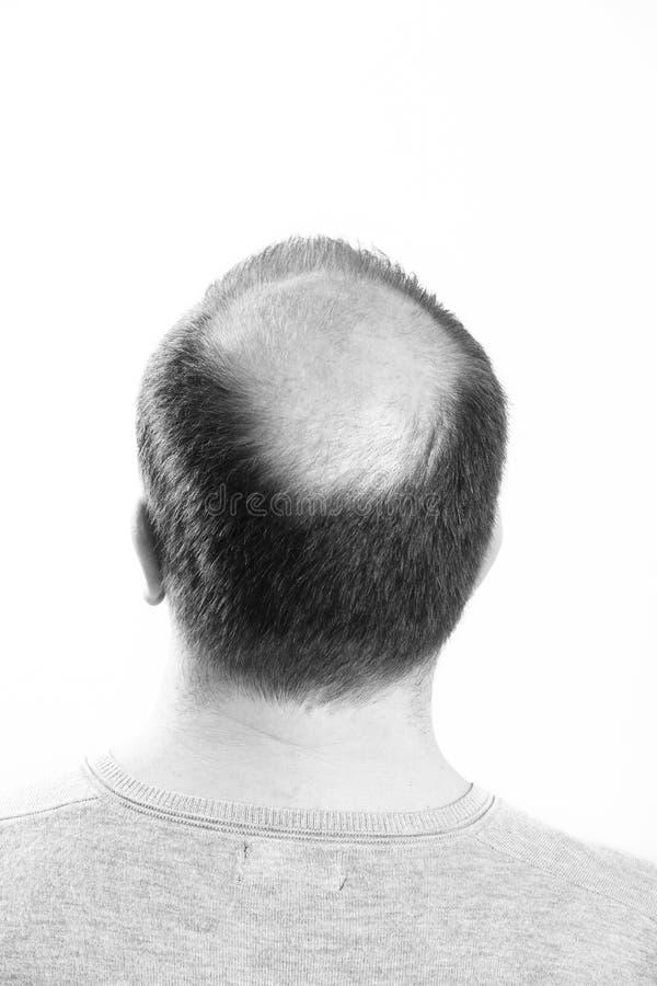 W średnim wieku mężczyzna dotyczący włosianej straty Baldness alopecia Czarny i biały obrazy royalty free