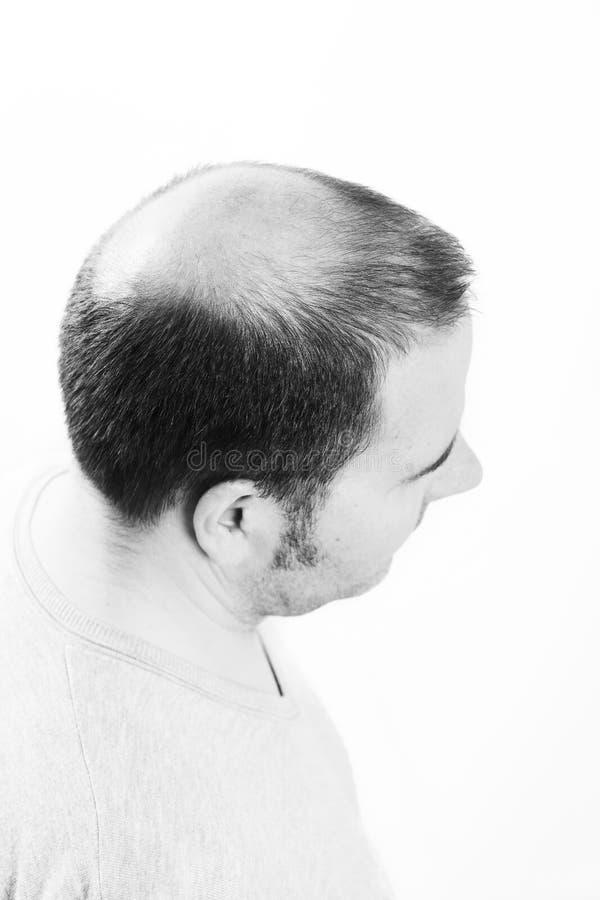 W średnim wieku mężczyzna dotyczący włosianej straty Baldness alopecia Czarny i biały zdjęcia stock