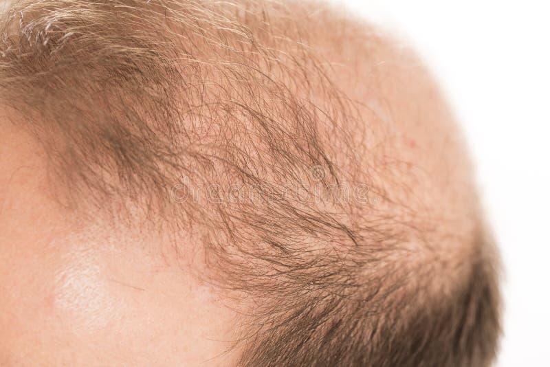 W średnim wieku mężczyzna dotyczący włosianej straty Baldness alopecia Czarny i biały zdjęcie royalty free
