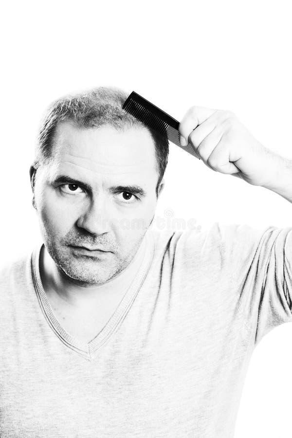 W średnim wieku mężczyzna dotyczący włosianej straty Baldness alopecia odizolowywającym obraz royalty free