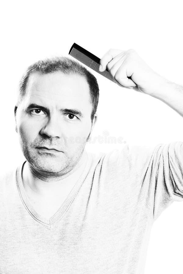 W średnim wieku mężczyzna dotyczący włosianej straty Baldness alopecia odizolowywającym obrazy royalty free