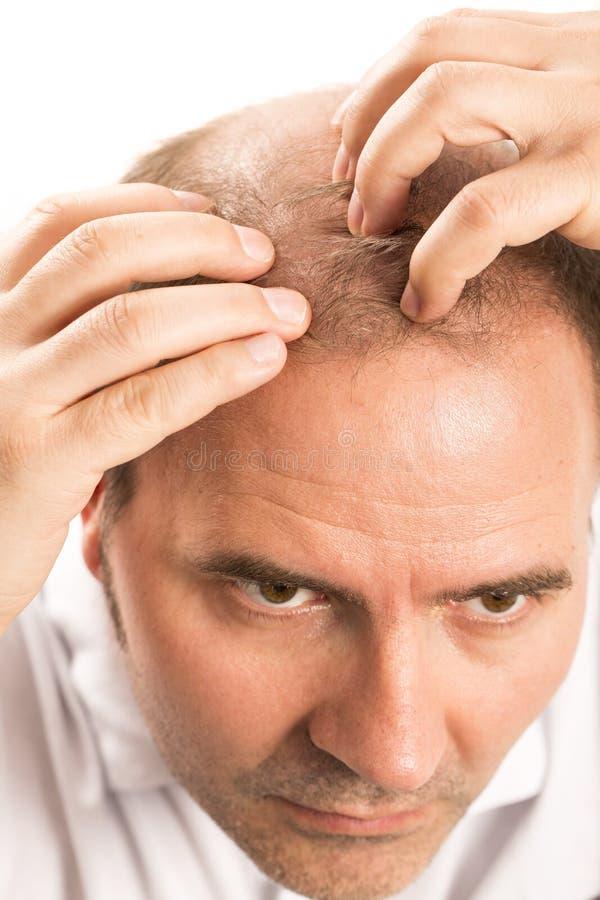 W średnim wieku mężczyzna dotyczący włosianej straty Baldness alopecia odizolowywającym obraz stock