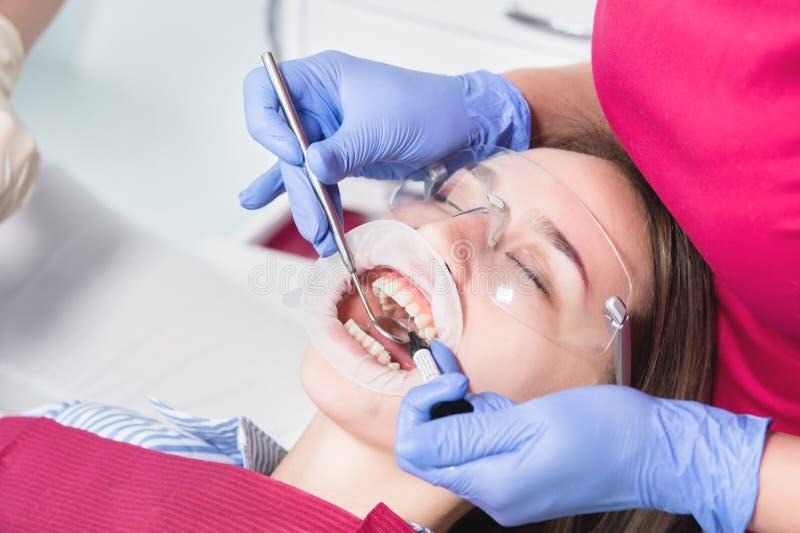 W górę dentysty stosuje polimer od strzykawki wśrodku młodego pacjenta frontowego zębu w stomatologicznym biurze obraz stock