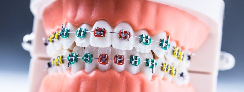 W górę modela ortodontycznych szczęk i zębów z brasami zdjęcia royalty free