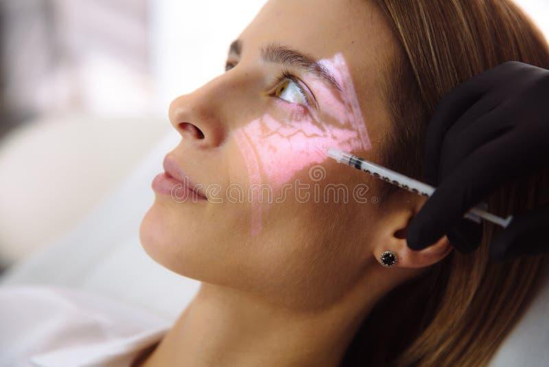 W górę pięknej żeńskiej twarzy z żyły cosmetologist i przeszukiwacza rękami z strzykawką podczas twarzowych piękno zastrzyków obraz stock