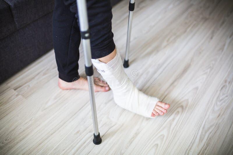 Double leg cast bondage
