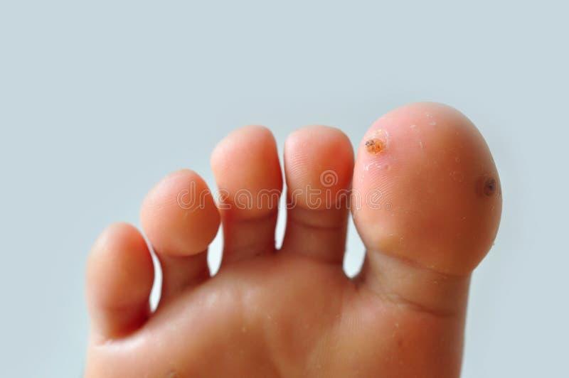 Wart on feet stock photo