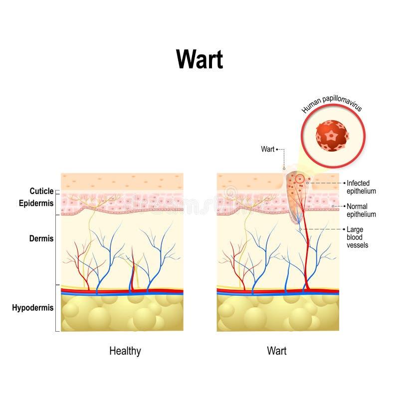 Free Wart. Human Papillomavirus Infection Stock Images - 84339724