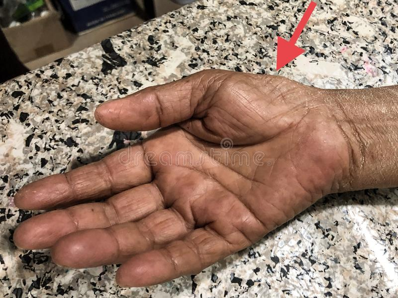 Wasting or Atrophy of Thenar Eminence Palm Muscles of in Asian, Burmese Female Elderly Patient. Caused by Carpal Tunnel Syndrome. Wasting or Atrophy of Thenar stock photo