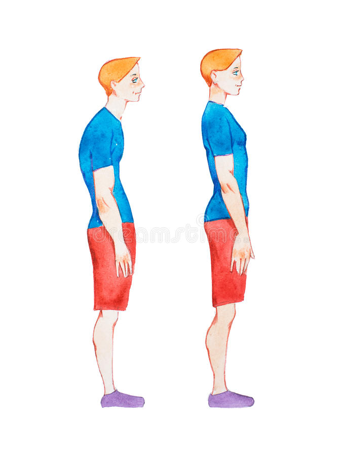 Watercolor illustration of people with right and wrong posture. Man with normal healthy spine and abnormal sick spine in royalty free illustration