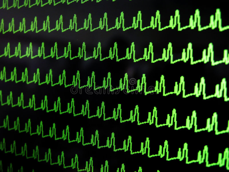 Waveform stock image