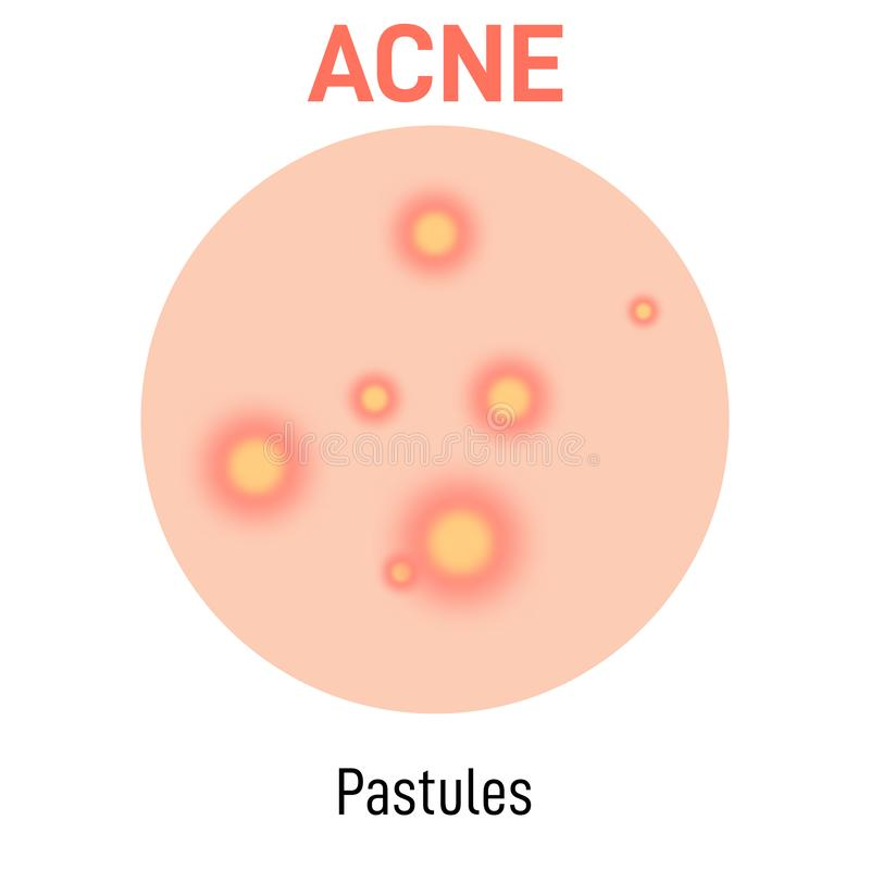 Pastules skin acne type. Vector icon. Skin disease acne whiteheads pimples type and face pore comedones vector illustration