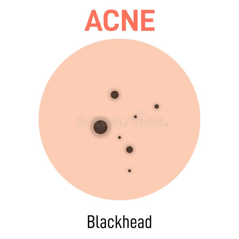 Blackhead skin acne type. Vector icon. Skin disease acne whiteheads pimples type and face pore comedones vector illustration