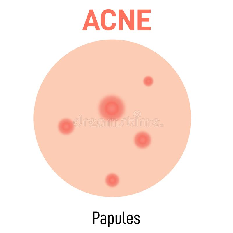 Papules skin acne type. Vector icon. Skin disease acne whiteheads pimples type and face pore comedones stock illustration