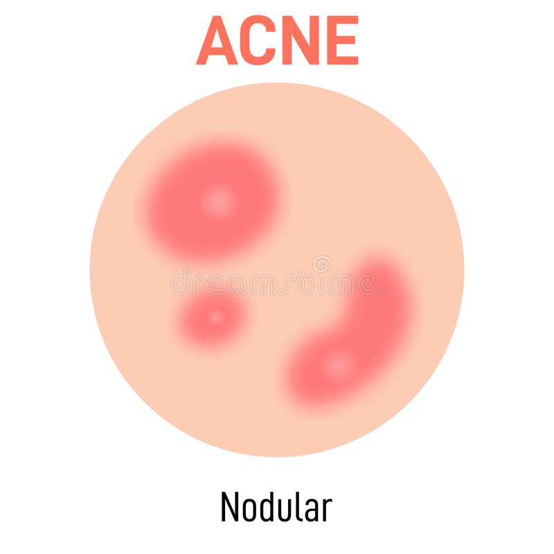 Nobular skin acne type. Vector icon. Skin disease acne whiteheads pimples type and face pore comedones royalty free illustration