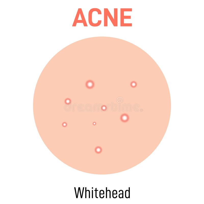 Whitehead skin acne type. Vector icon. Skin disease acne whiteheads pimples type and face pore comedones stock illustration