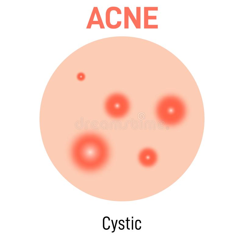 Cystic skin acne type. Vector icon. Skin disease acne whiteheads pimples type and face pore comedones stock illustration