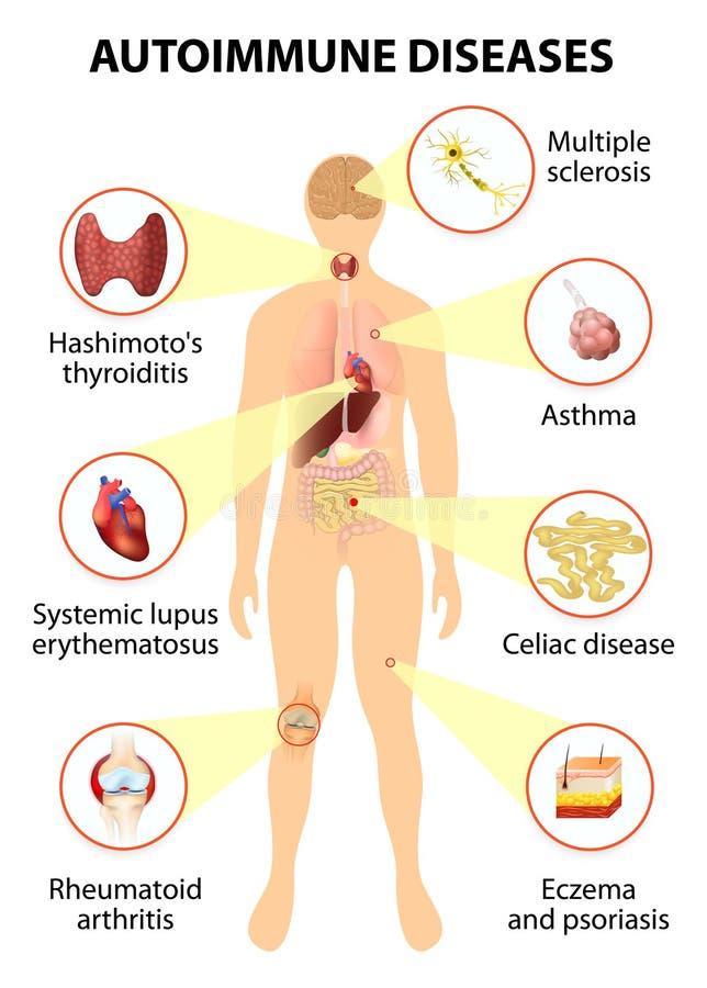 Weefsels van het menselijke die lichaam door auto-immune aanval wordt beïnvloed stock illustratie