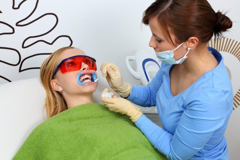 Weiß werdene Zähne stockbild
