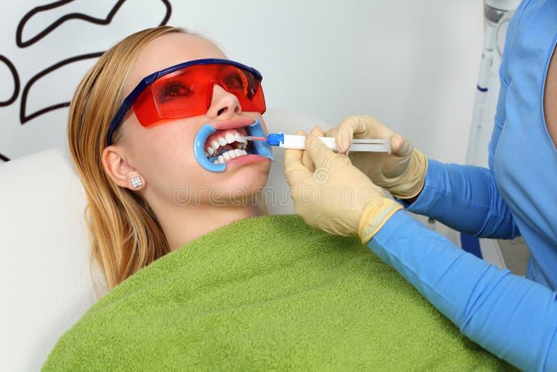 Weiß werdene Zähne lizenzfreies stockfoto