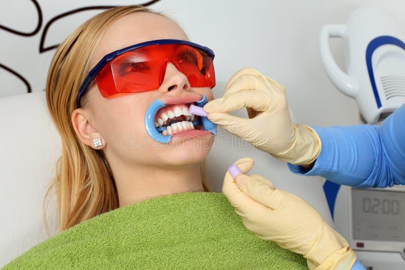 Weiß werdene Zähne lizenzfreies stockbild