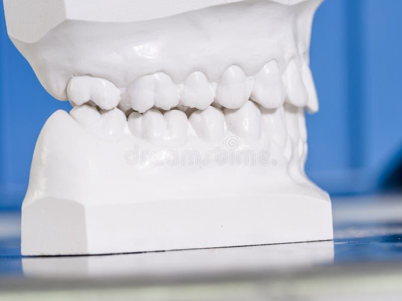 Weiße Form zahnmedizinisch vom Gips stockbilder