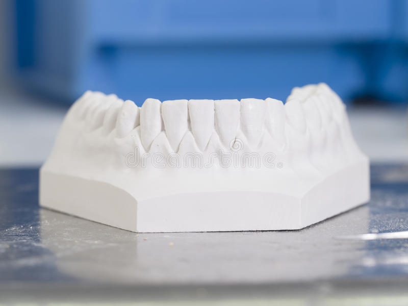 Weiße Form zahnmedizinisch vom Gips stockbild